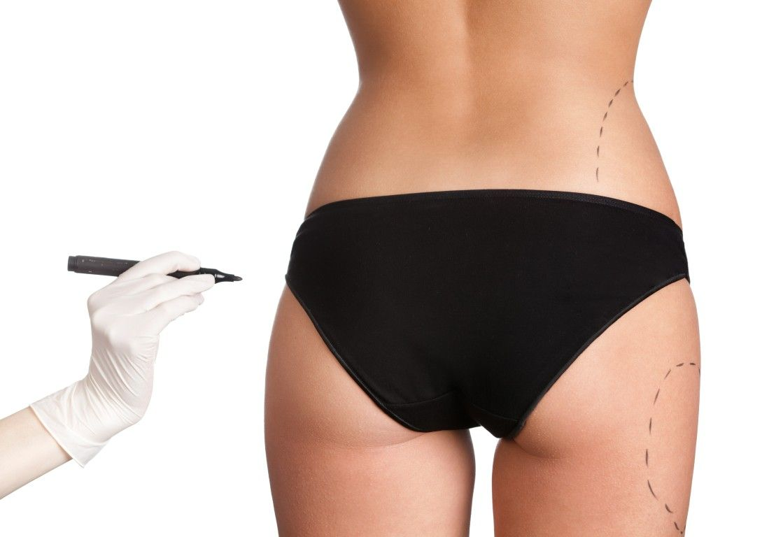 Butt Augmentation Atlanta GA