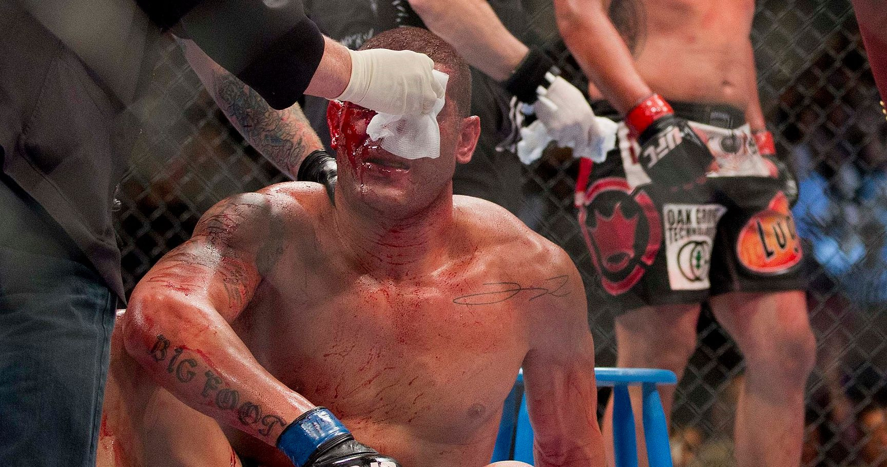 The 10 Most Shocking Bloodbaths in UFC History