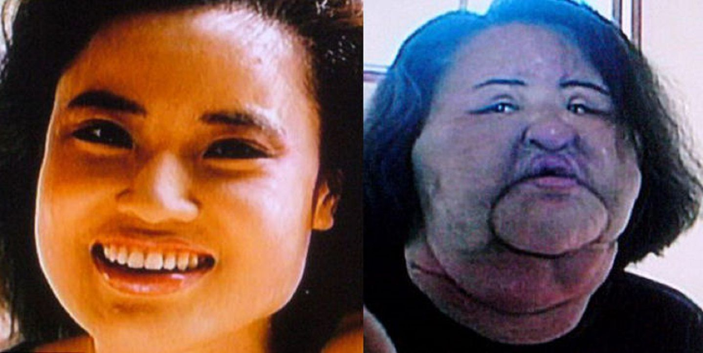 15 Of The Most Shocking Plastic Surgery Disasters Therichest