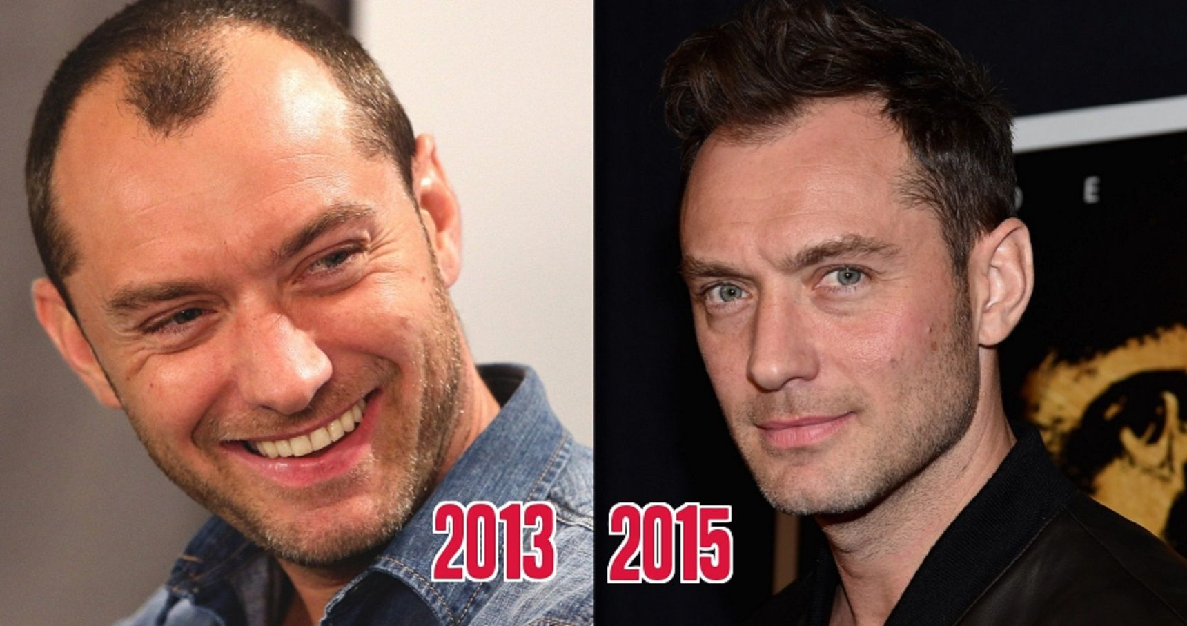 10 Celebs Who Are Suspiciously No Longer Bald(ing)
