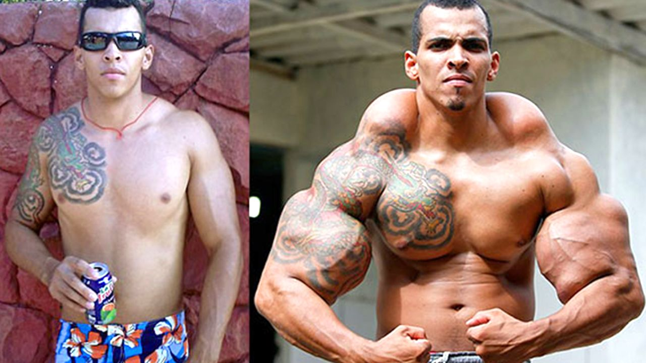 10 Most Extreme Bodybuilding Transformations Ever