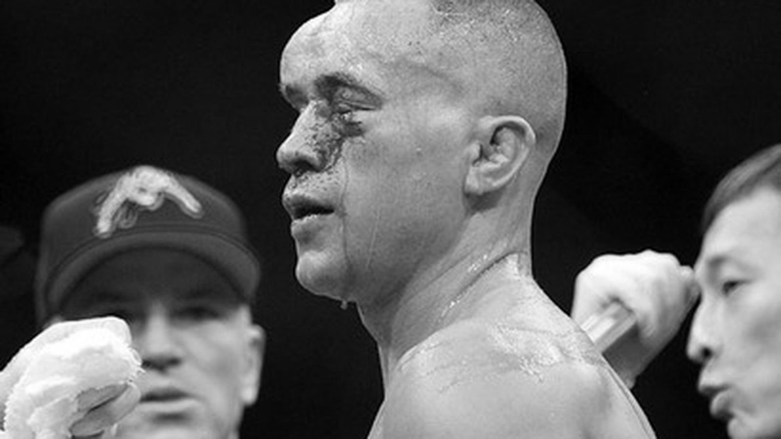 The 10 Worst Beatings in MMA History
